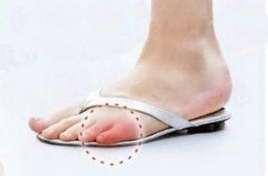 судороги пальцев на ногах