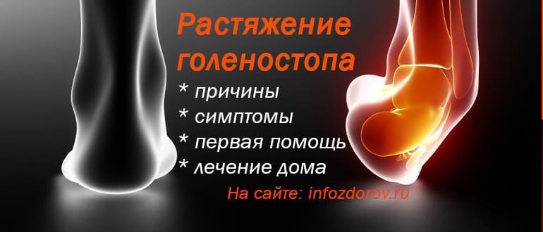 Растяжение связок голеностопа - лечение