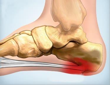 Чем лечить шпоры на ногах