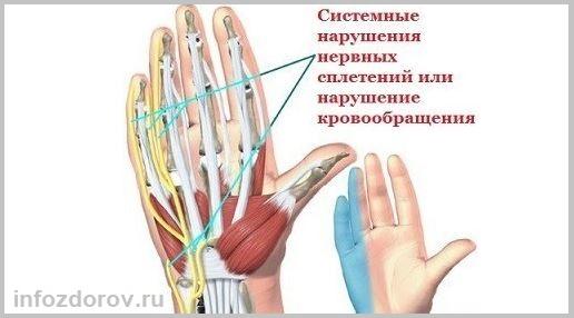 Сводит пальцы на руках причины - внутренние