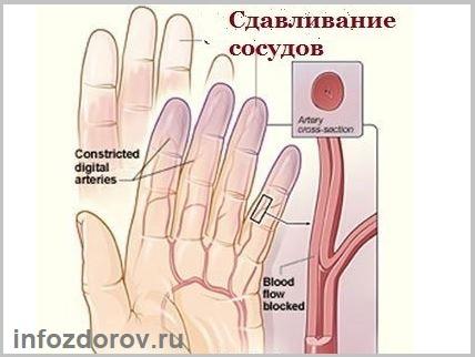 Пальцы рук сводит судорогой причины — внешние