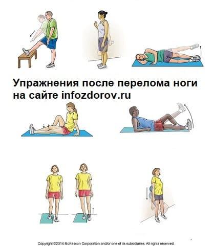 Упражнения после перелома ноги