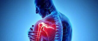 Вывих плеча - лечение после вправления