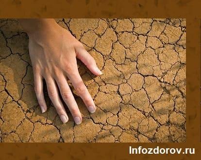 Почему шелушится кожа на ладонях рук