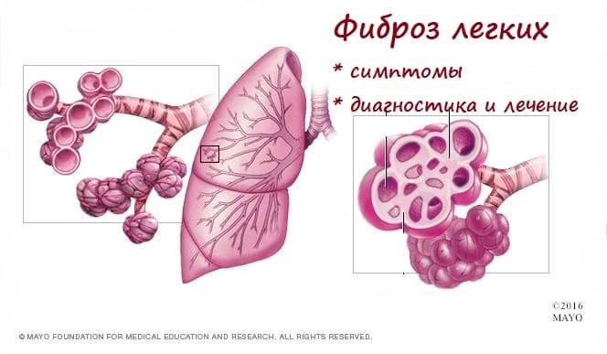 Фиброз легких после пневмонии - как лечить