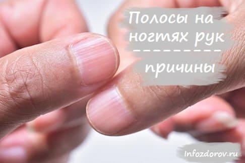 Продольные полосы на ногтях рук - причины